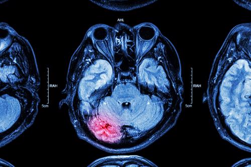An MRI scan showing an injury to a brain after an accident.