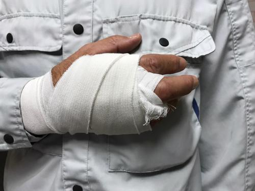 A man with his hand bandaged after an accident injured it.