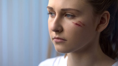 Girl with facial scarring. Contact our Orange County disfigurement lawyers if you suffered facial scarring in an accident.