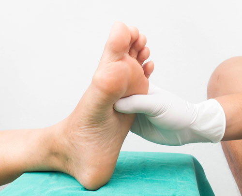 Doctor checking a foot for nerve damage